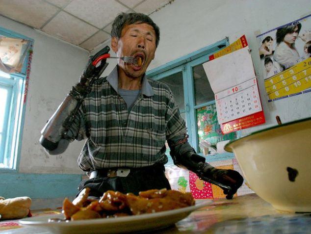 ダイナマイト漁で両手を失った男性が自ら鉄くずから義手を作る
