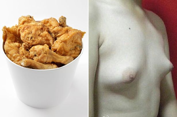 Mans-breasts-enlarge-after-eating-fried-chicken